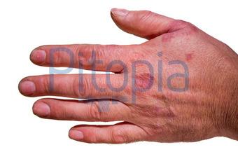 Finger ausschlag Help With